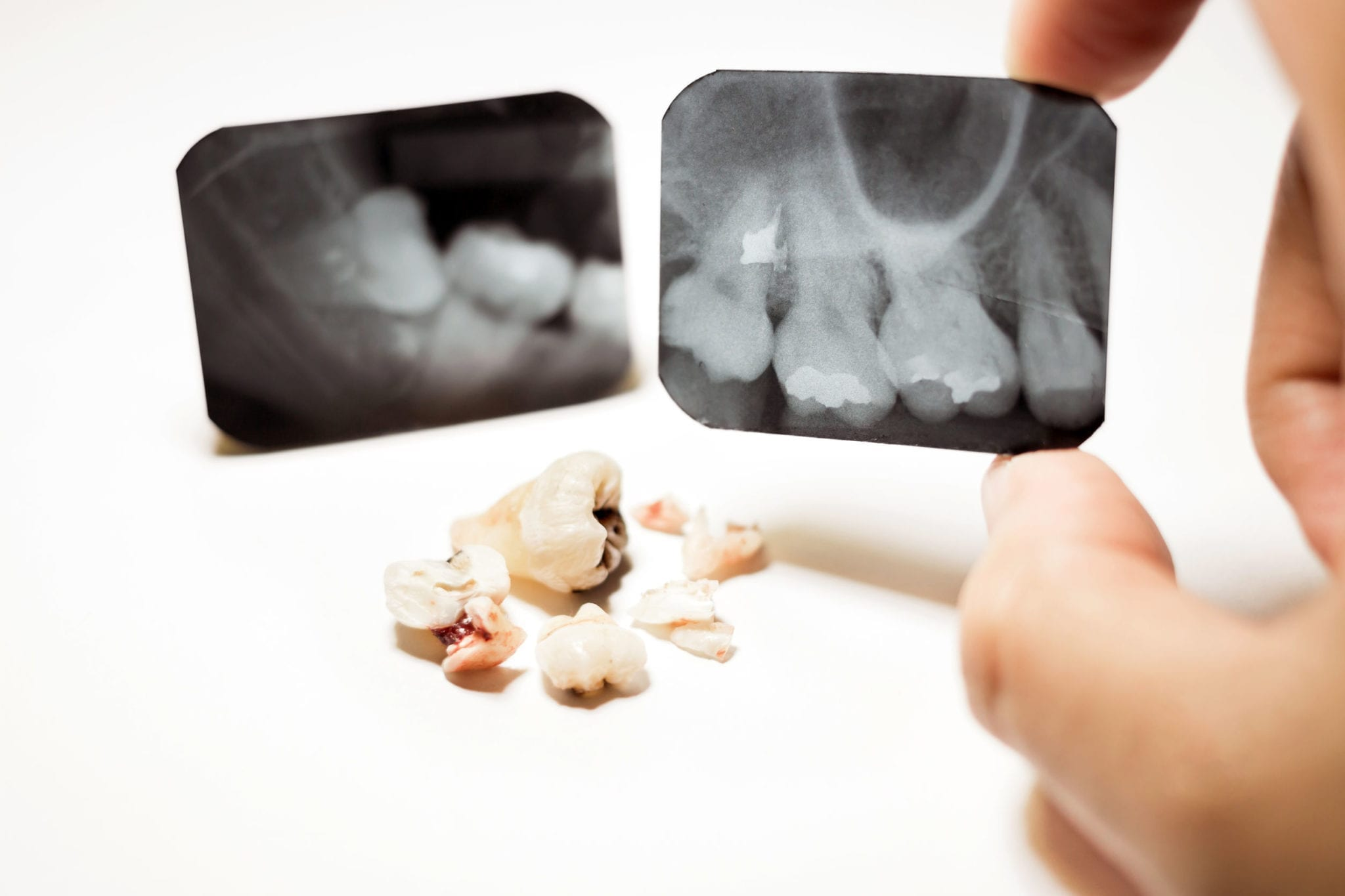 Elements of a Florida Dentist Malpractice Case